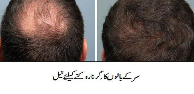 Dua For Hair Loss and Growth
